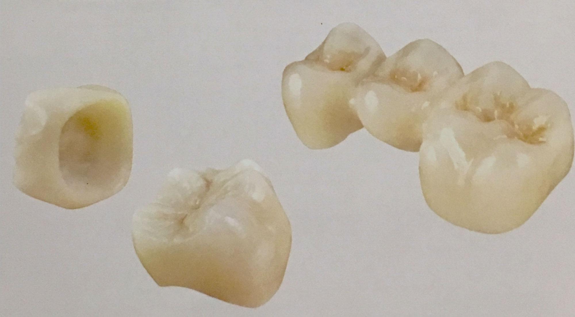 Zahnersatz • Zahnarzt Dr  Springer, Berlin Pankow