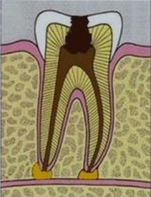 Wurzelkanal-Behandlung: Zahnwurzel ist infiziert