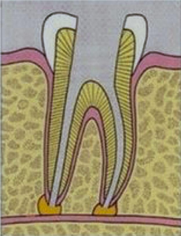 Wurzelkanal-Behandlung: zerfallene Zahnnerv wird entfernt