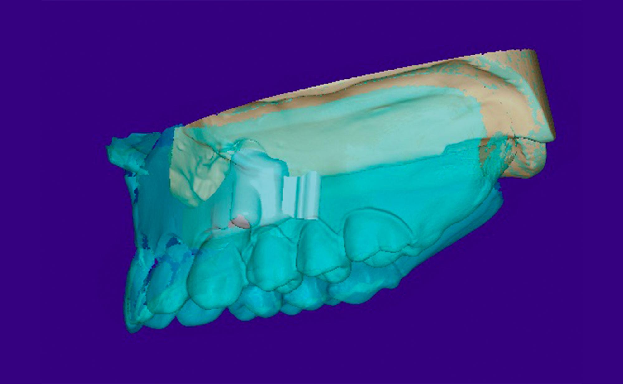 Konstruktion der Prothese