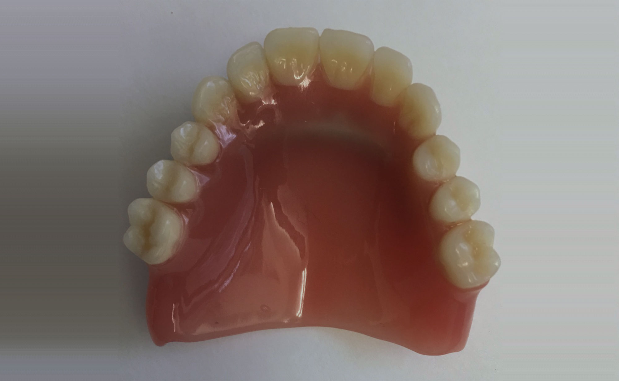 Die ersetzte Zahnreihe